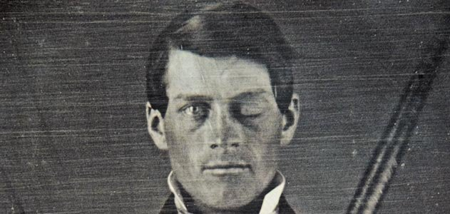 Phineas Gage: Neuroscience's Most Famous Patient | History ...